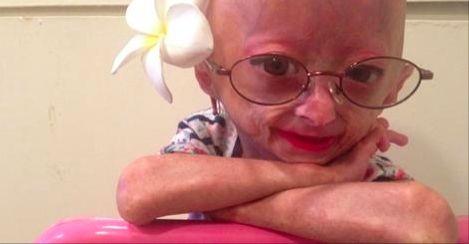 一生下来就是老人!这位11岁老女孩,用自己的乐观感动了全世界…