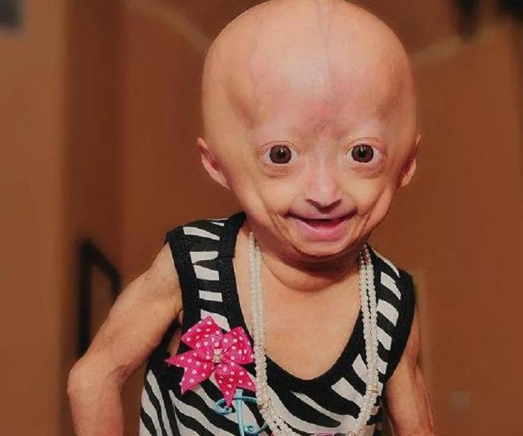 一生下来就是老人! 这位11岁老女孩, 用自己的乐观感动了全世界…