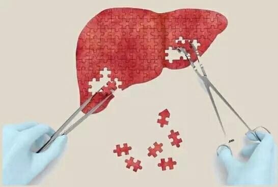"""【健康】脂肪长在这里最危险!一份最实用的脂肪肝""""修复说明书"""""""