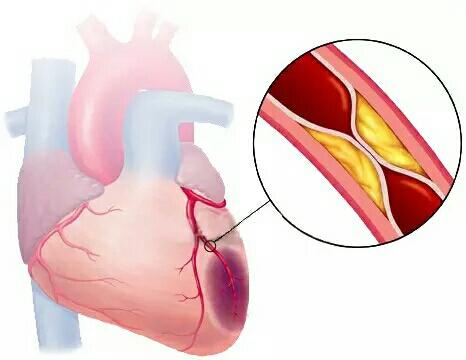 【健康】 99%的血栓无征兆!记住一个字,让你一生无栓!