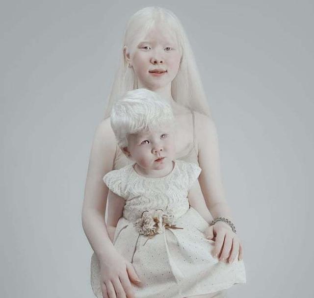 他们一出生便没有颜色,虽遭受歧视,他们经历了什么……